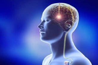 """L'ospedale """"Perrino"""" riferimento regionale per la Dbs del Parkinson"""