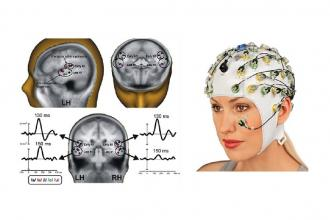 Scoperto come il cervello riconoscere i suoni delle lingue