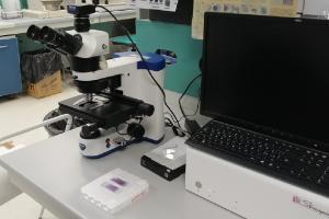Al Di Venere speciale microscopio per rivelare tumori del sangue